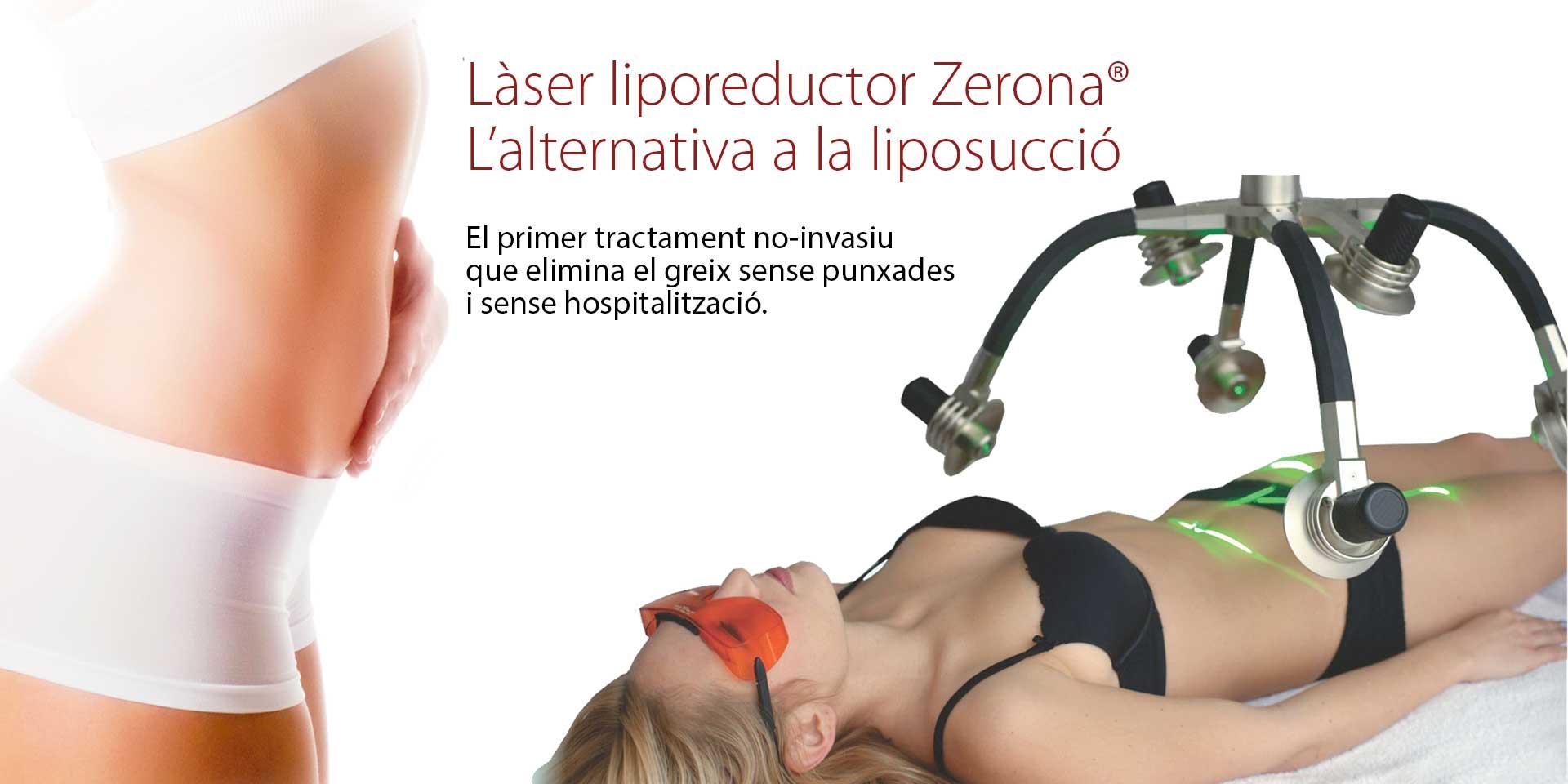 Zerona, l'alternativa a la liposucció
