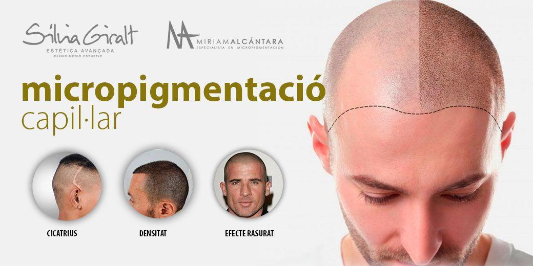 Micropigmentació capil·lar a Igualada